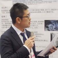 小児発症原発性硬化性胆管炎患者における 血清肝線維化マーカーM2BPGi測定の有用性の検討を報告している 梅津守一郎氏